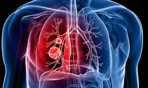 1lung
