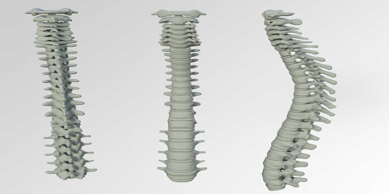 spine bone backpain vertebrae intervertebral disc