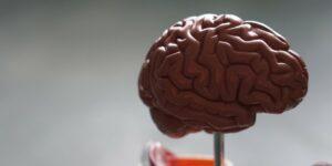 alzheimer's senile dementia brain disease alzheimer's disease