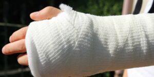 Injury Orthopedics Chalk Bandage Treatment